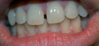 Có cần niềng răng để đóng khoảng hở nhỏ giữa răng cửa không?