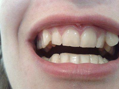 Răng nanh xoay thì nên chọn niềng thường hay niềng trong suốt?