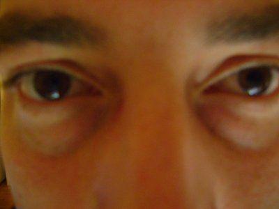 Cách tốt nhất để khắc phục rãnh nước mắt?