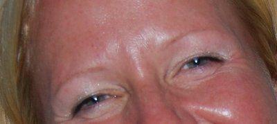 Ultherapy có thể trị sụp mí mắt không?