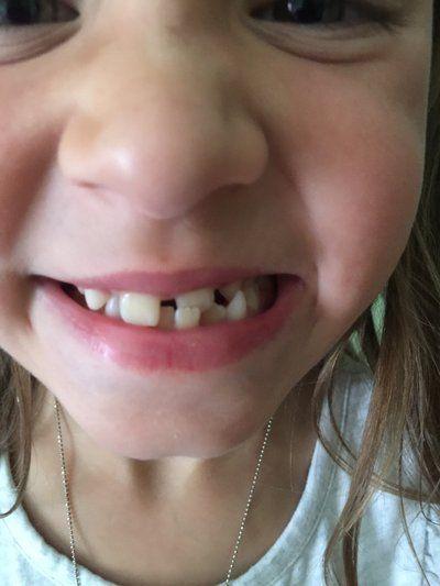 7 tuổi đã nên niềng răng hay chưa?