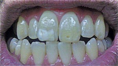 Niềng răng xong rồi dán sứ Veneer hay chỉ cần dán sứ Veneer?