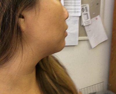 Có nên tiêm filler vào cằm để làm cho khuôn mặt gọn hơn không?