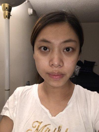 Cách khắc phục mặt bên phải to hơn bên trái?