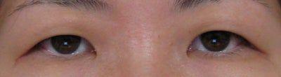 Phẫu thuật tạo mắt hai mí có trị được bọng mỡ và xệ mí mắt trên không?