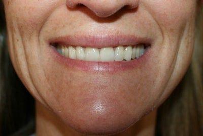 Nên chọn loại filler nào cho các rãnh môi hàm? Cần tiêm bao nhiêu?