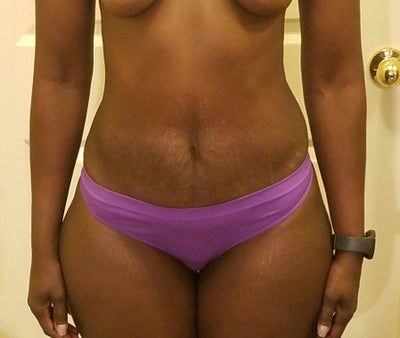 Có thể chỉnh sửa cơ bụng trong khi tạo hình thành bụng mini không?
