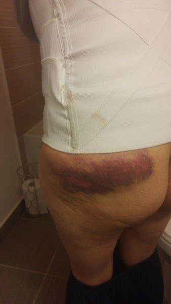 Bị bầm tím ở mông sau tạo hình thành bụng mini và hút mỡ có bình thường không?