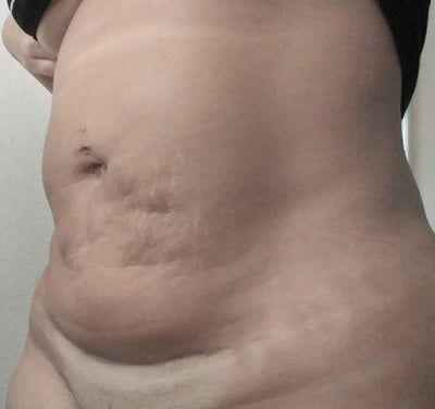 Nên tạo hình bụng mini dời rốn hay tạo hình thành bụng toàn phần?
