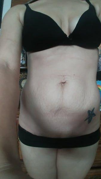 Tập thể dục có giảm được da chùng ở bụng không hay phải tạo hình thành bụng mini?