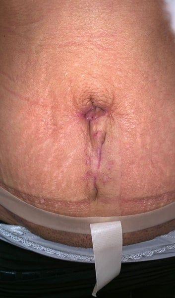 Bụng biến dạng  sau tạo hình thành bụng mini thì nên sửa lại thế nào?