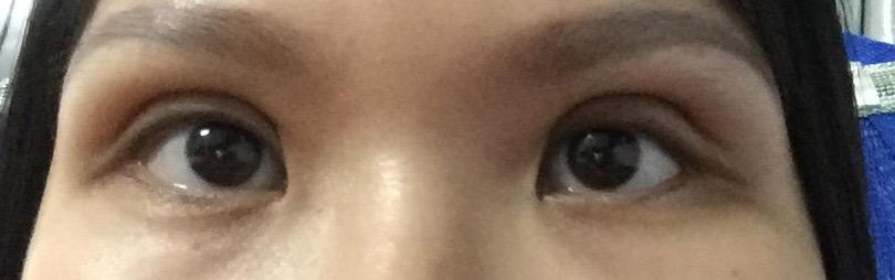 Em đã cắt mí được 1,5 tháng nhưng thấy sâu quá lộ hốc mắt,cho em hỏi như vậy có sâu không và khắc phục thế nào ạ