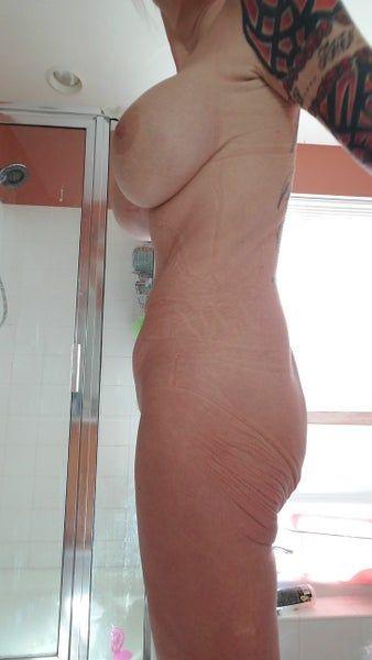 Không có mông, cần đặt túi độn. Liệu có thể thực hiện quy trình này kết hợp với căng da bụng để điêu khắc tạo hình thành bụng không?