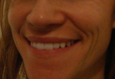 Restylane có trị được nếp nhăn hai bên miệng marionette line không?