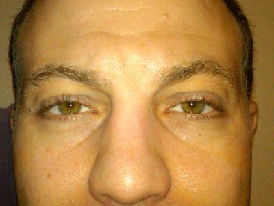 Nên tiêm filler hay cắt mí dưới để khắc phục rãnh nước mắt?