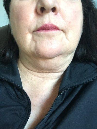 Tôi 59 tuổi. Có cách nào có thể loại bỏ được cằm đôi và da cổ chùng nhão mà không cần phẫu thuật căng da cổ hoặc căng da mặt không?