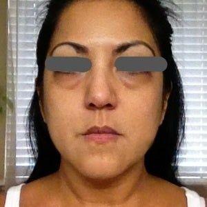 Restylane có trị được quầng thâm dưới mắt không?