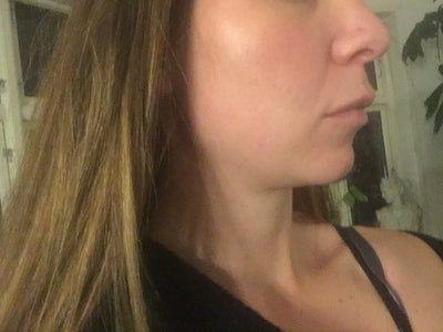 Tôi muốn đường viền hàm trông rõ nét hơn. Hút mỡ cổ có thể giúp tôi đạt được điều đó không? Hay Kybella?