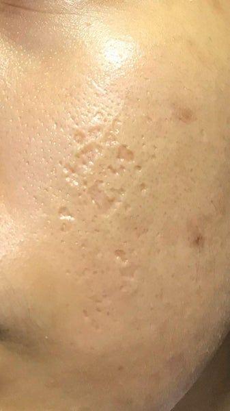 Picosure có hiệu quả khi điều trị sẹo rỗ do mụn không?