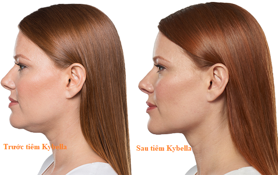 AboutKybella