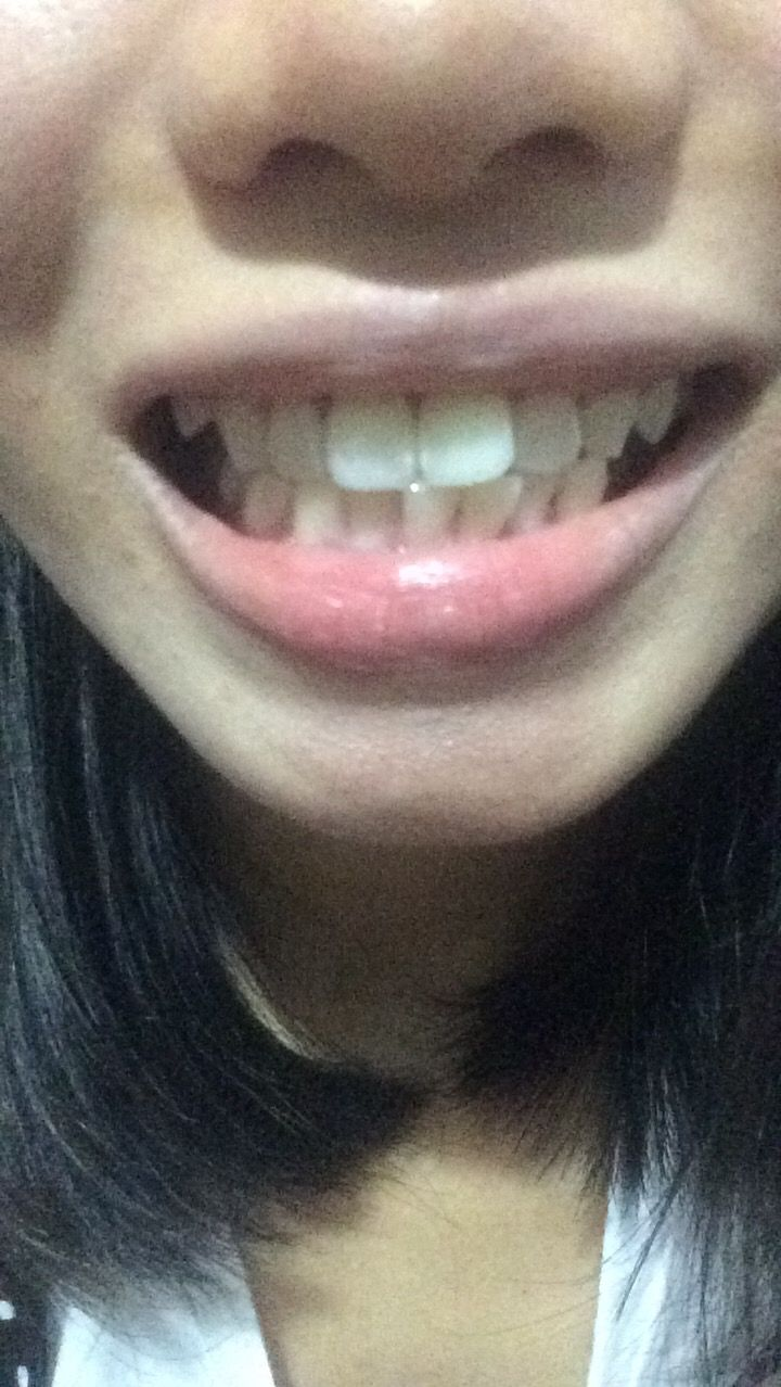 Em muốn hỏi răng em hô do hàm hay do răng ạ và nếu niềng răng có thể cải thiện được cằm lẹm không ạ?