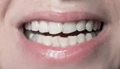 Tôi có cần niềng răng cho cả 2 hàm không? Có đúng là không thể chỉnh sửa răng cửa hàm trên của tôi bằng cách dán sứ Veneers hoặc Lumineers không?