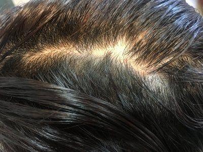 Đây có phải là rụng tóc từng vùng không?