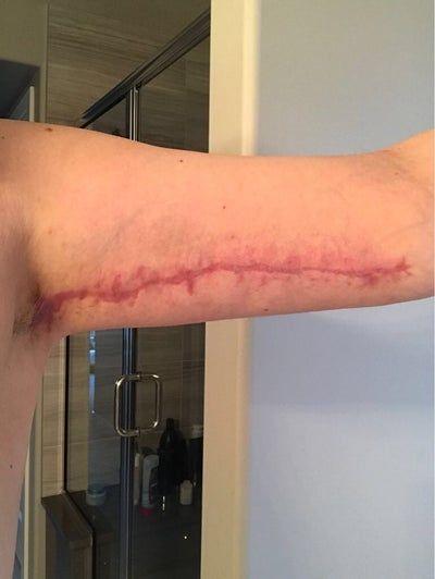 Vết sẹo bị đỏ và rộng sau căng da cánh tay