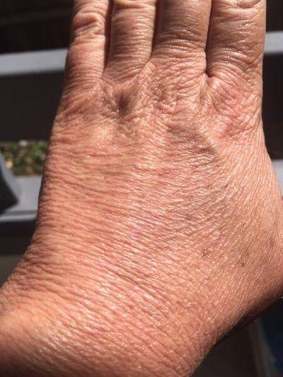 Loại laser hiệu quả nhất để căng da bàn tay?