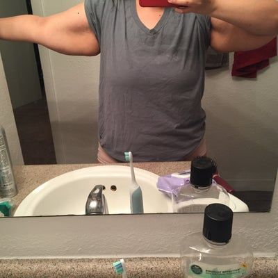Nên căng da cánh tay ngay hay nên tiếp tục giảm cân thêm rồi mới phẫu thuật?