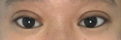 3 tháng sau phẫu thuật: Mí mắt vẫn sưng phồng (nếp mí xúc xích)