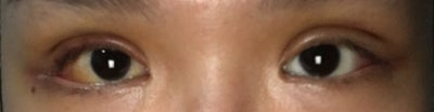 Chỉ khâu bật ra và phù kết mạc sau khi tạo mắt hai mí kết hợp mở góc mắt ngoài
