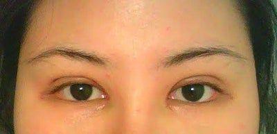 14 ngày sau cắt mí kết hợp mở góc mắt trong, hai bên mắt quá gần nhau?