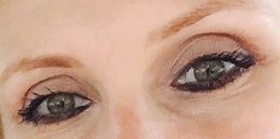 Hốc mắt bị trũng sâu, làm thế nào để chỉnh sửa mí mắt trên?