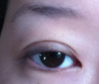 Bị sẹo và thừa nếp gấp da sau khi tạo mắt hai mí với đường rạch 1 phần, có cần chỉnh sửa không?