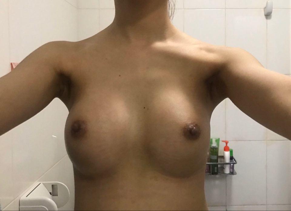 Em vừa làm ngực được 20 ngày. Em thấy ngực em lồi túi ngực đúng không ạ?và làm thế nào để khắc phục ạ?