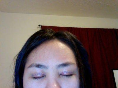 4 ngày sau cắt mí: mí mắt của tôi có giảm sưng được nhiều nữa không?