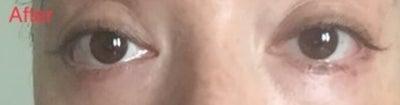 10 tháng sau phẫu thuật cắt mí dưới vẫn bị phù kết mạc, mí mắt chảy xệ, cảm giác căng chặt và cực kỳ không thoải mái. Đây có phải là do khâu mí dưới quá chặt không?