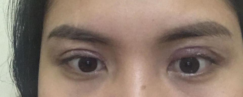 Mắt trợn, không nhắm kín được, xước giác mạc và có dấu hiệu mờ mắt sau lần sửa thứ 2