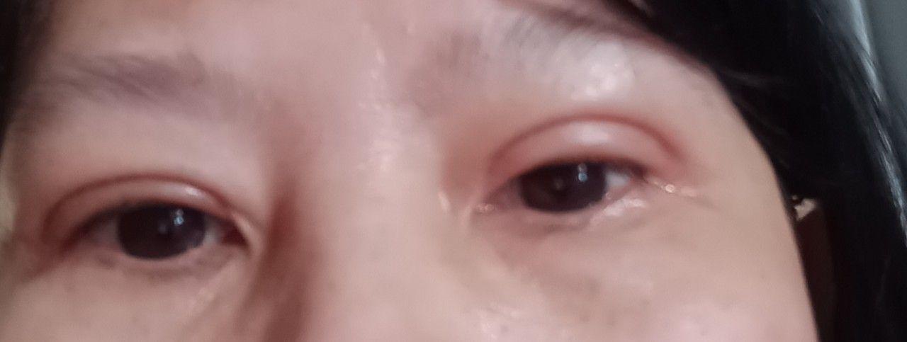 Chào bác sĩ! Tôi cấy mỡ mí mắt cắt da chùn 8 tuần, tôi thấy mí mắt không đều, mí phải sưng và to hơn mí trái sau một thời gian tình trạng này hết không ạ? Nếu không tôi phải làm sao? Tôi hong muốn phẩu thuật lần 2.  Và tôi có tiếp tục ăn kiêng không? Nhờ