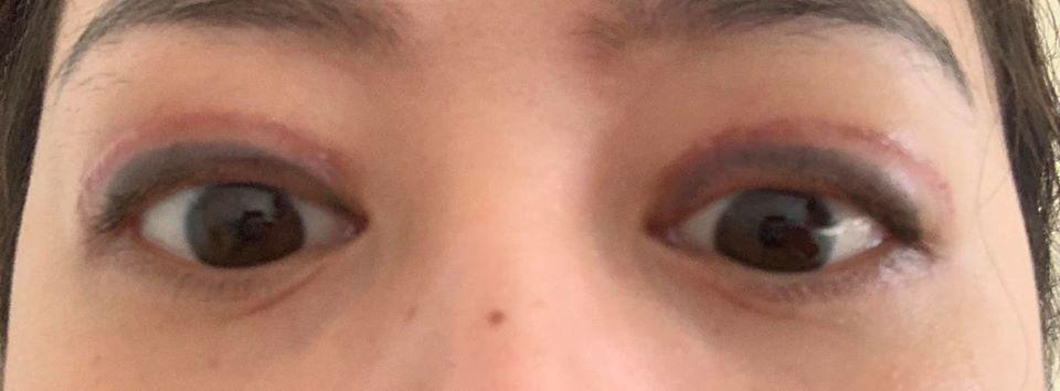 Cắt mí được gần 1 tháng, mắt không nhắm kín, lật mí