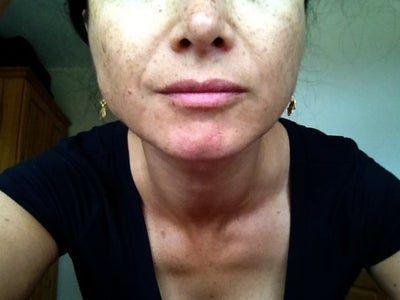 Tôi đã tiêm botox vào cơ cắn được 2 ngày, khoảng bao lâu sau thì thấy kết quả?