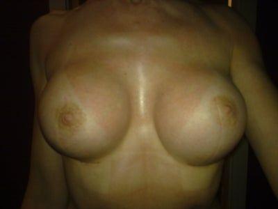 7 tuần sau nâng ngực bằng túi độn: Đây có phải là co thắt bao xơ không?