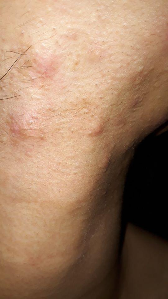 Trị khỏi mụn nội tiết nặng mọc ở các vùng như má, quai hàm, thái dương như thế nào?