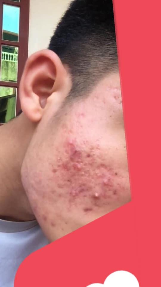 Cách chữa trị mặt mụn và da bị viêm nặng?