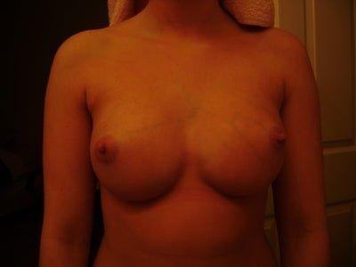 Ngực dính liền, biến dạng cơ và lồi đáy vú sau nâng ngực bằng túi độn?