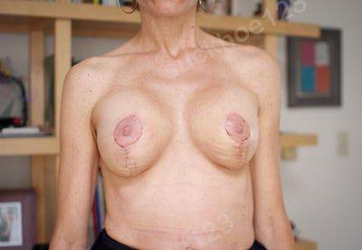 Lồi đáy vú sau khi đặt túi độn ngực và treo ngực sa trễ 3 tuần