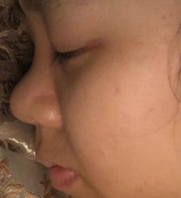 Tháo mũi 3 ngày bị sưng cứng và co hếch đầu mũi, bao lâu sẽ hết?