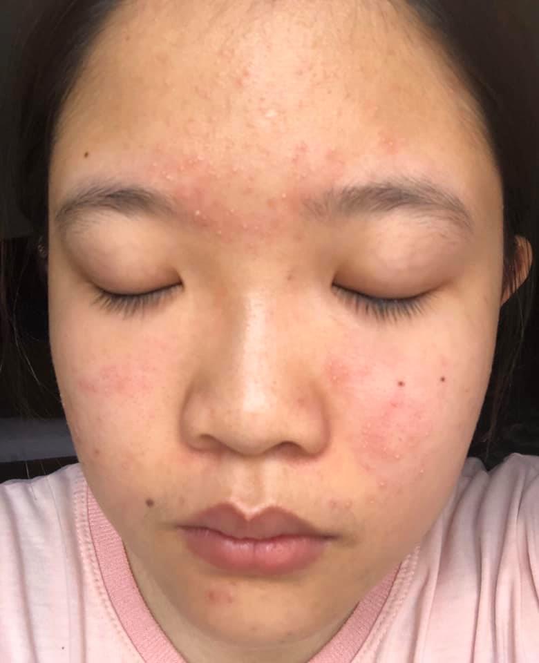 Nguyên nhân và cách chữa trị mụn có đầu trắng