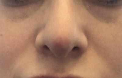 Đỏ đầu mũi sau 7 tháng phẫu thuật nâng mũi